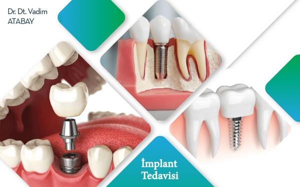 Samsun Diş Hekimi İmplant Tedavisi